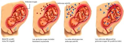 Sch�ma de l'incompatibilit� foeto-maternelle (IFM)